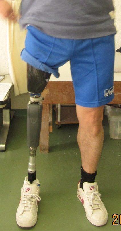 Rheo Knee®の画像
